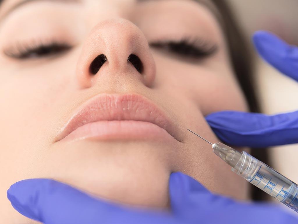 Close de rosto de uma mulher tendo a mão de dermatologista aplicando um preenchimento dérmico no lábio dela. Representação das técnicas de preenchimento labial.